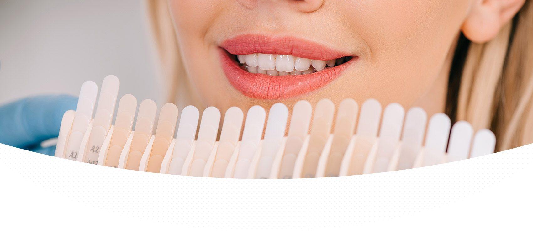 Teeth Whitening - North Aurora Smiles